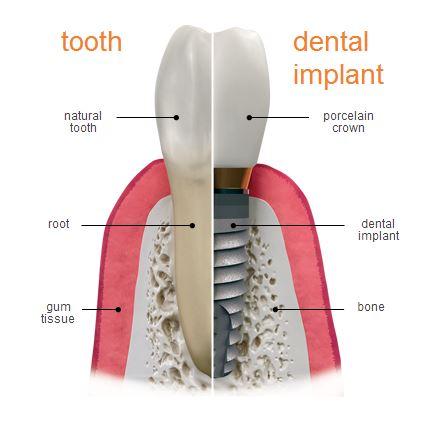 Image result for dental implants model