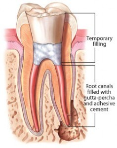 root canal treatment procedure - canal filling
