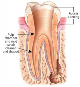 root canal treatment - pulp chamber