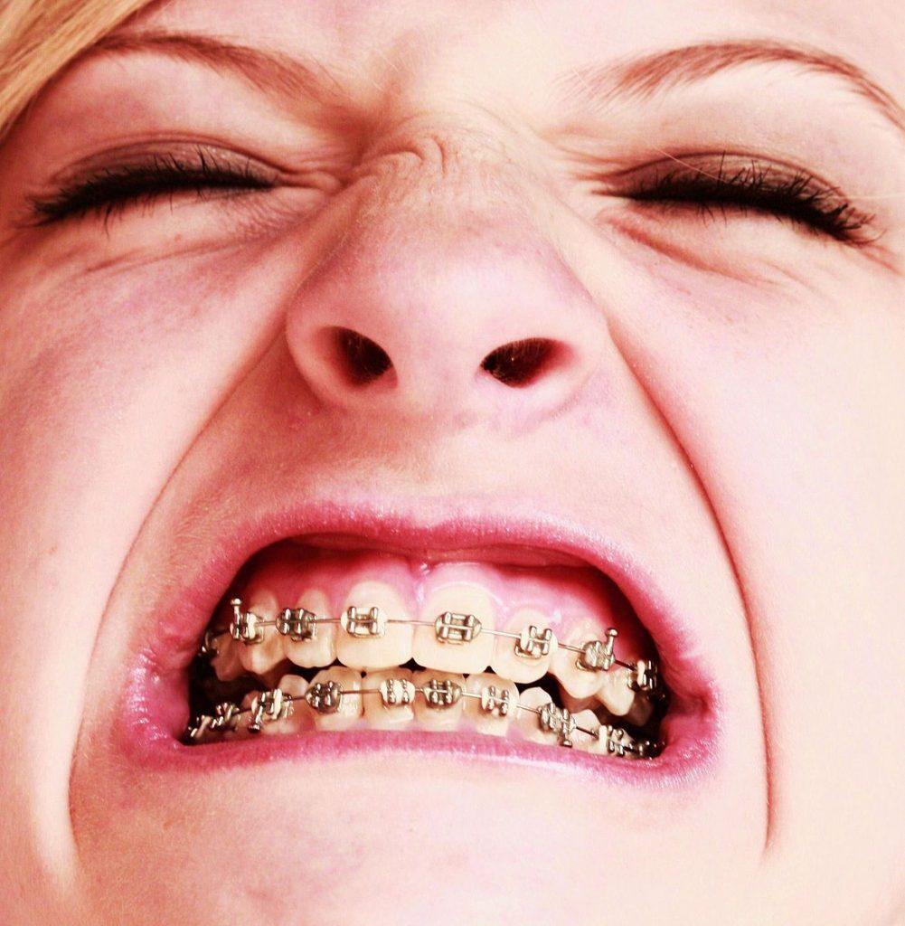 braces near me girl with braces