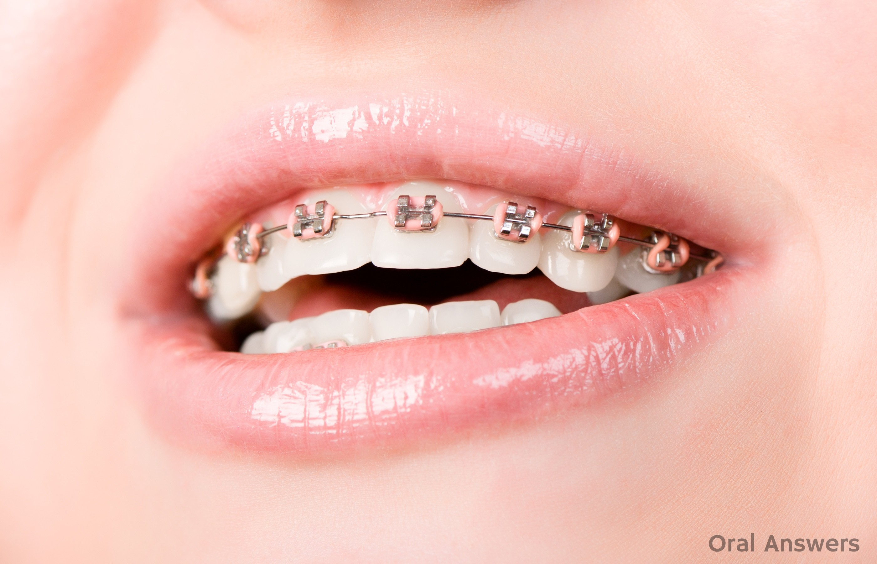braces avon dental round lake