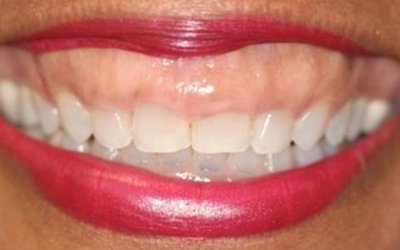 Accelerated Orthodontics: Straighten Your Teeth in a Few Months