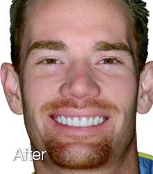 dental veneers after shot of girl one