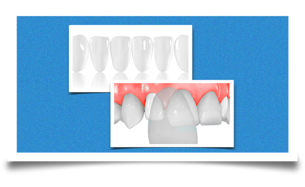 dental veneers together
