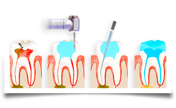 root canal procedure image 1