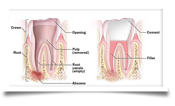 root canal procedure image 3