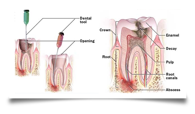 root canal procedure image 2